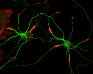 neuron:cytoskel10233